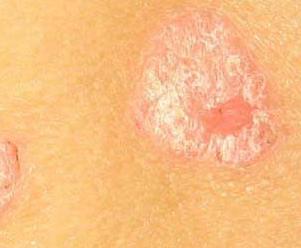 治疗儿童脓疱型牛皮癣的中药有哪些