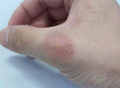 银屑病的症状特点是什么